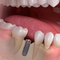 implant-after-placement