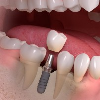 straumann dental implants with roo dental sunshine coast kawana dentist