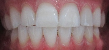 teeth whitening with roo dental sunshine coast kawana dentist