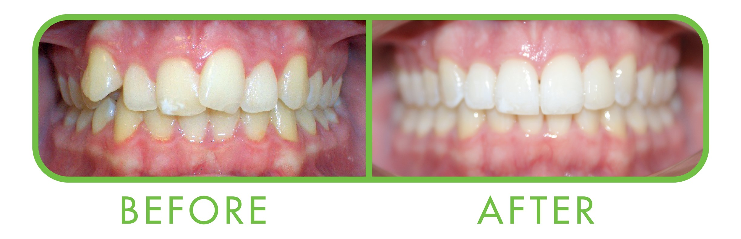 clear aligners clear correct with roo dental sunshine coast kawana dentist